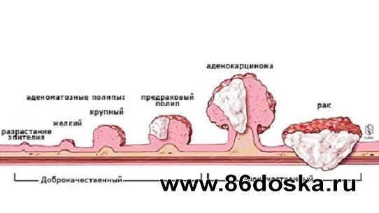Рак кишечника.  Лечение.